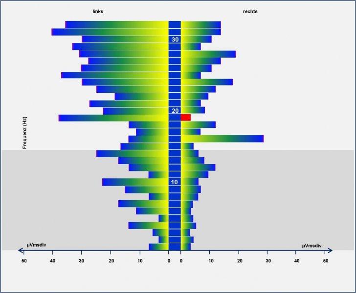 EEG 1.jpg